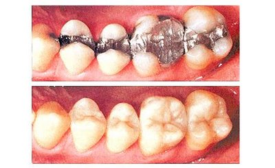 Композитные материалы в стоматологии вред