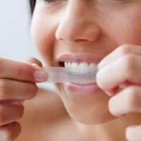 Неотразимая улыбка: план лечения и предварительный просмотр