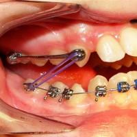 Фиксаторы и другие ортодонтические устройства, предназначенные для лечения болезней зубов, челюстей и расстройств сна