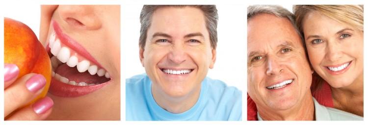 Отбеливание зубов: процедуры и их цена