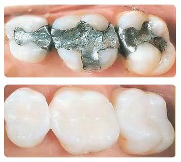 Стоимость пломбирования зуба