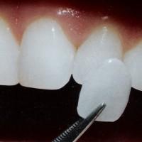 Фарфоровые зубные виниры. Информация и фотографии: до и после установки