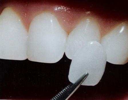 зубы перед винирами фото