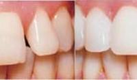 Часто задаваемые вопросы и ответы о зубных винирах