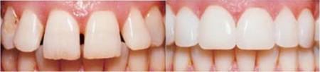 Стоимость зубных виниров и процедура установки