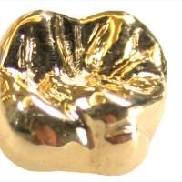 Зубные коронки: процедура, виды, металлокерамические, золотые и керамические
