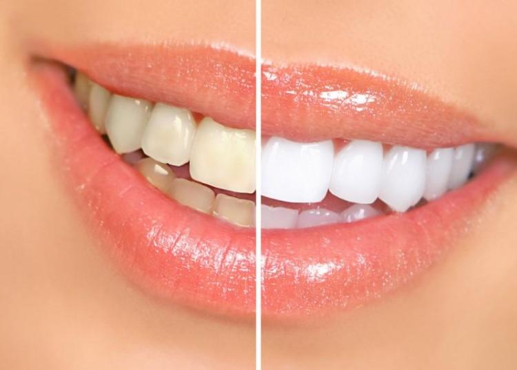 До и после отбеливания зубов Zoom