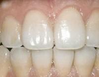 Отбеливание зубов по технологии Zoom: пусть ваша улыбка излучает свет!