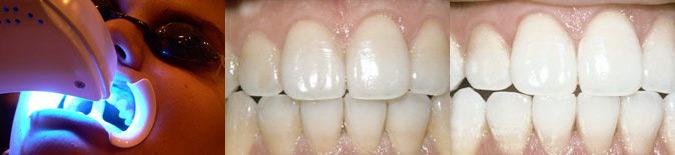 Отбеливание зубов по технологии Zoom: до и после отбеливания