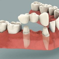 Зубной мост: установка, процедура, уход и стоимость