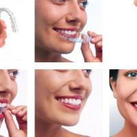 Invisalign Teen для подростков – эстетическое ортодонтическое решение для выравнивания зубов подростков