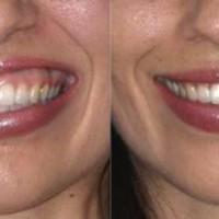 Десневая улыбка: разрастание дёсен или отложенное прорезывание зубов