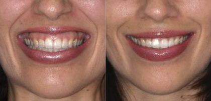 Десневая улыбка: до и после процедуры