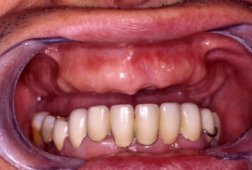 Съемные зубные протезы: цены на сайте Съемное