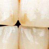 Кариес: как предотвратить это явление и не допустить образования полостей в зубах