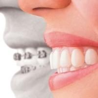 Ортодонтическая коррекция: лечение неправильного прикуса, кривых и скученных зубов