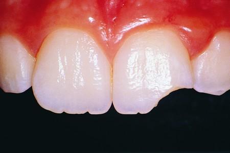 Повреждения зубов: сколы, трещины на зубах, сломанные зубы