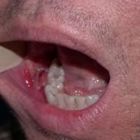 Рак полости рта: признаки, диагностика и лечение