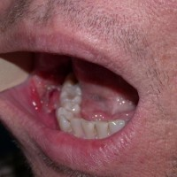 Профилактика и лечение рака полости рта
