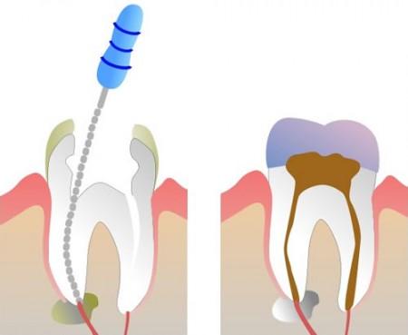 Лечение корневого канала