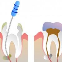 Процедура лечения корневого канала. Кто ее проводит и сколько она стоит?
