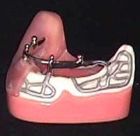 Насадка на зубы