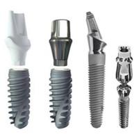 Зубные имплантаты: консультация, процедура, восстановление и послеоперационный уход