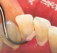 Удаление зубного камня, чистка и полировка поверхности корней зубов: глубокая чистка зубов