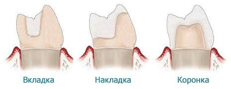 Стоматологические накладки