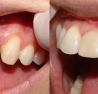 Зубные имплантаты: фото до и после имплантации