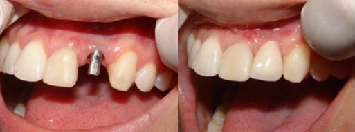 Зубные имплантаты: до и после имплантации