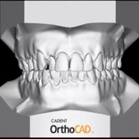 Цифровые снимки модели челюсти: виртуальное совершенство