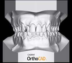 Цифровые оттиски модели челюсти: виртуальное совершенство