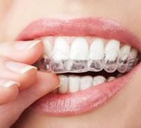 Краткий экскурс в домашнее отбеливание зубов