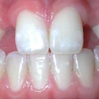 Виды лечения генетических отклонений в развитии зубов
