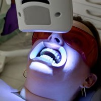 Отбеливание зубов светодиодным светом