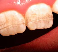 Наследственные стоматологические заболевания: виды и симптомы