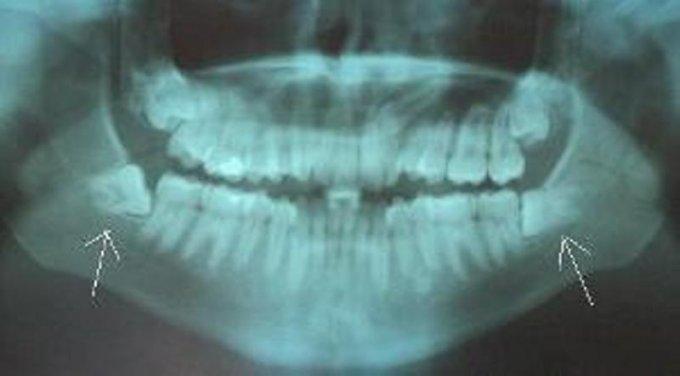 Удаление зуба мудрости уход