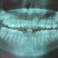 Зубы мудрости: проблемы и преимущества удаления