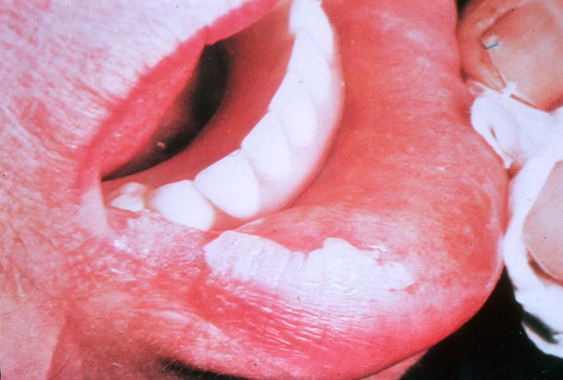Лейкоплакия Губы Фото