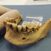 Древняя зубная бактерия засвидетельствовала эволюцию заболевания