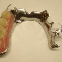 Съёмные зубные протезы - пластиночные и бюгельные
