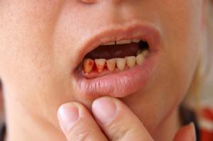 Кровоточивость десен - это серьезный симптом