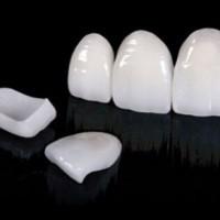 Несъёмное протезирование зубов