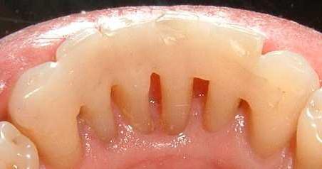 отбеливание зубов можно пить кофе