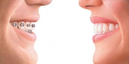 Для выпрямления зубов