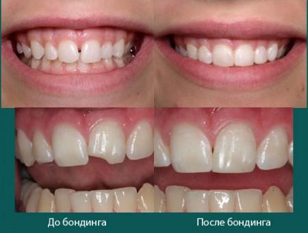 Бондинг в стоматологии: фото до и после бондинга