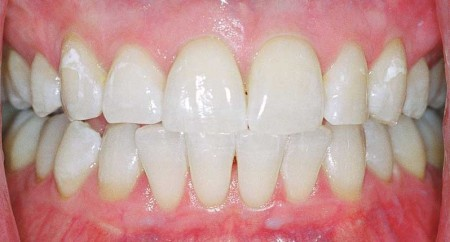 Приподнялась десна над зубом