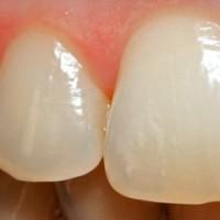 Эрозия эмали зубов и реставрация зубной эмали