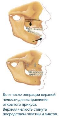 Лечение открытого прикуса хирургическим способом